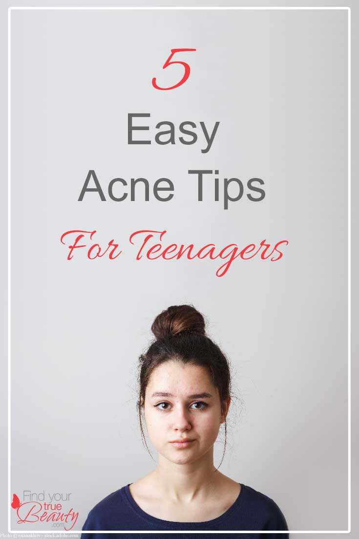 5 Easy Acne Tips for Teenagers